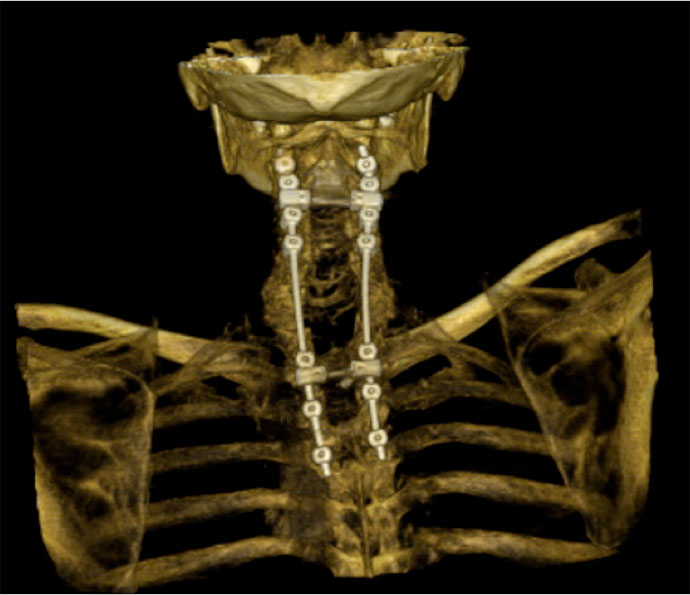 Three-dimensional reconstruction of postoperative cervical and thoracic spine tomography, depicting posterior fusion from the 2nd cervical to the 4th thoracic vertebra.