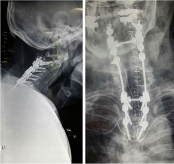 Post-operative X-rays depicting posterior fusion from the 2nd cervical to the 4th thoracic vertebra.