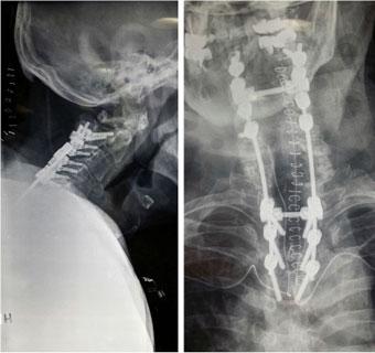 Rrezet X postoperative që përshkruajnë fuzionin posterior nga vertebra e 2-të cervikale deri te vertebra e 4-t torakale.