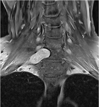 Imazheria e rezonancës magnetike të zonës cervikale përpara operacionit që tregon pjesën e neurinomës që shtrihet përtej shtyllës kurrizore dhe që ndodhet shumë pranë nervave dalës