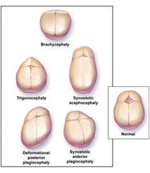 Συγγενείς ανωμαλίες κρανίου και προσώπου